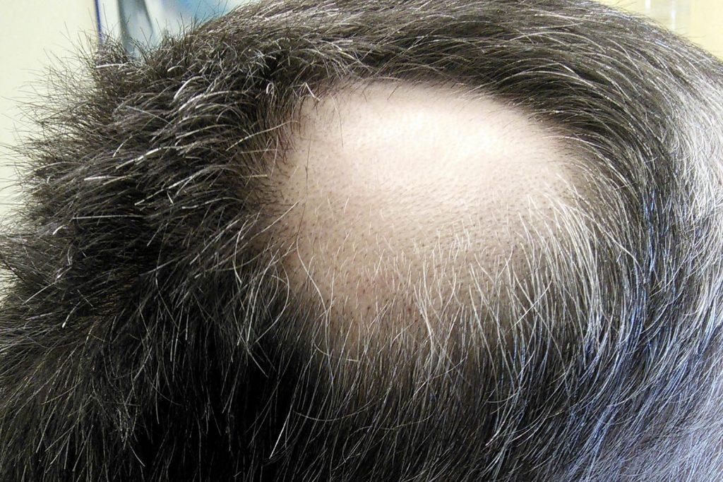 foto de parte de falha no cabelo causada por alopécia