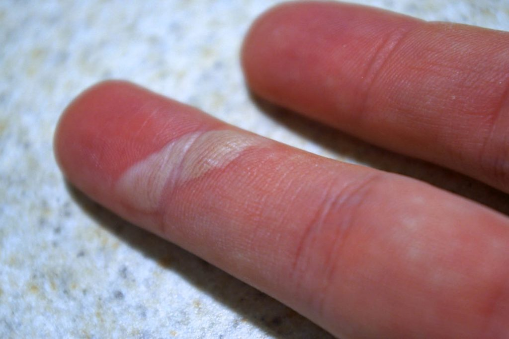 Foto de dedo com a formação de uma bolha